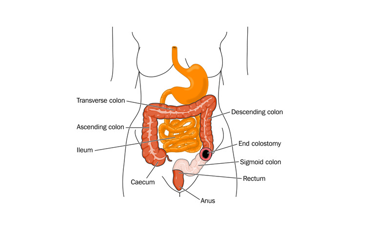 End colostomy for inflammatory bowel disease (IBD) - Crohn's disease and ulcerative colitis (UC)