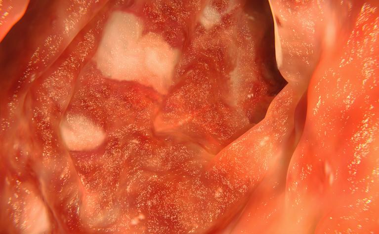 Ulcerative colitis endoscopy view of colon