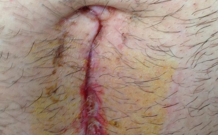 Ileocaecal surgery for Crohn's disease