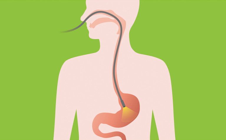 Picture of a gastroscopy going into a mouth to the stomach