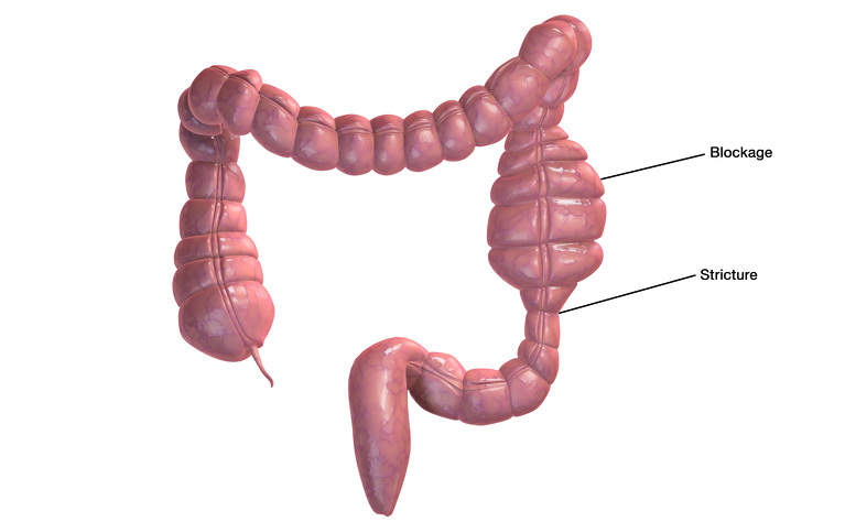 A stricture and blockage in the large intestine - Crohn's disease